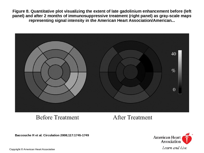 Figure 8. Quantitative plot visualizing the extent of late gadolinium enhancement before (left panel) and after