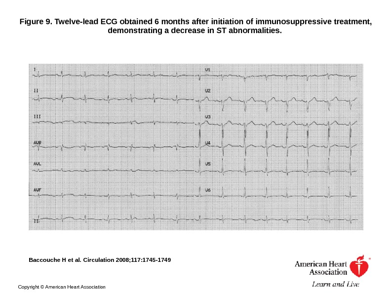 Figure 9. Twelve-lead ECG obtained 6 months after initiation of immunosuppressive treatment,  demonstrating a decrease