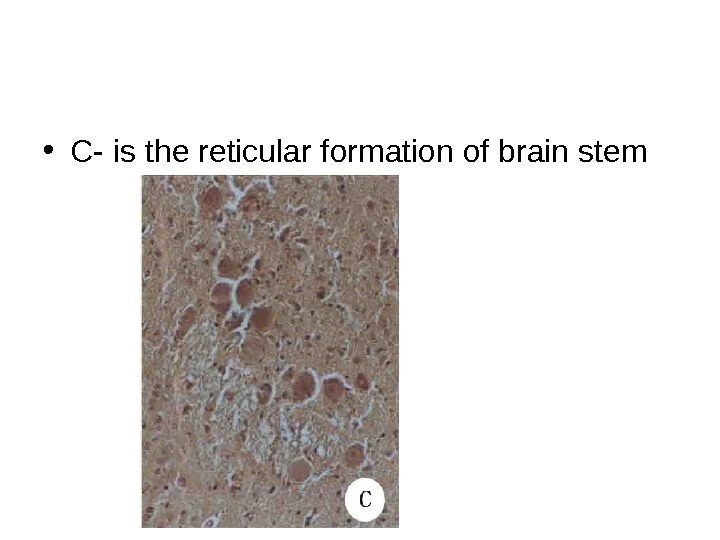 • C- is the reticular formation of brain stem