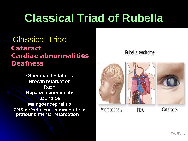 Classical Triad of Rubella   Classical Triad  Cataract Cardiac abnormalities Deafness Other