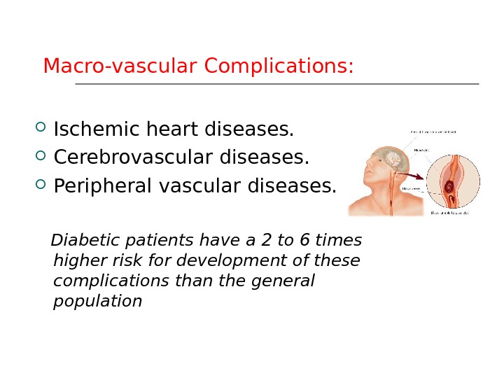 Macro-vascular Complications:  Ischemic heart diseases.  Cerebrovascular diseases.  Peripheral vascular diseases. Diabetic patients have