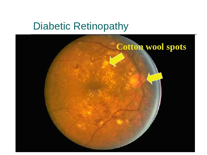 Diabetic Retinopathy Cotton wool spots