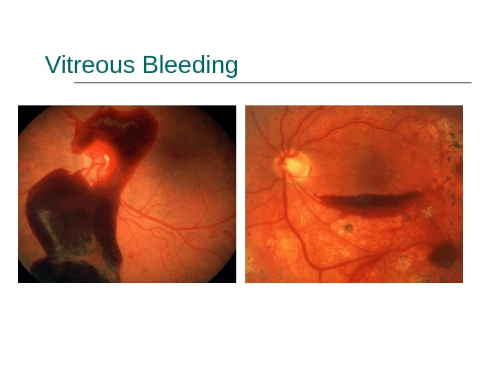Vitreous Bleeding