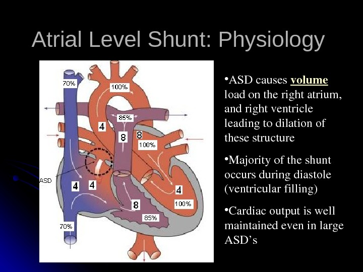 Atrial Level Shunt: Physiology • ASDcauses volume loadontherightatrium, andrightventricle leadingtodilationof thesestructure • Majorityoftheshunt occursduringdiastole (ventricularfilling) •