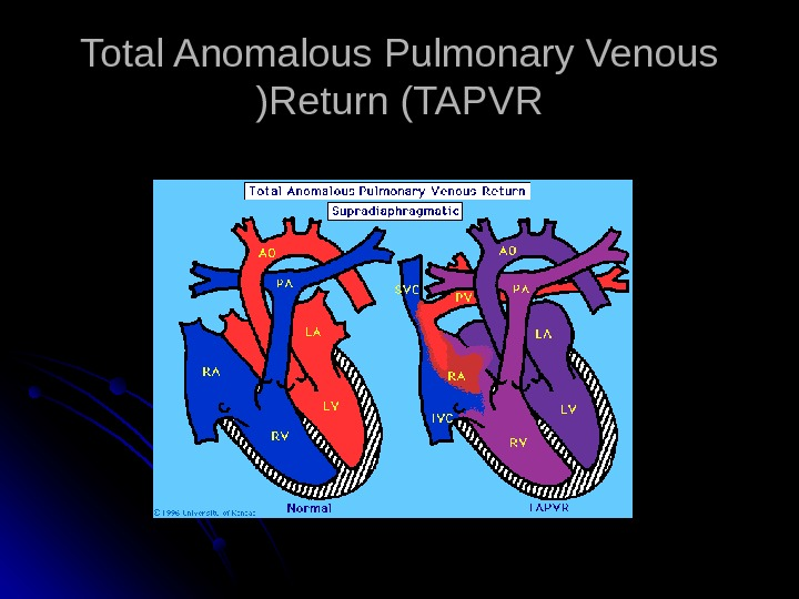 Total Anomalous Pulmonary Venous Return (TAPVR ((