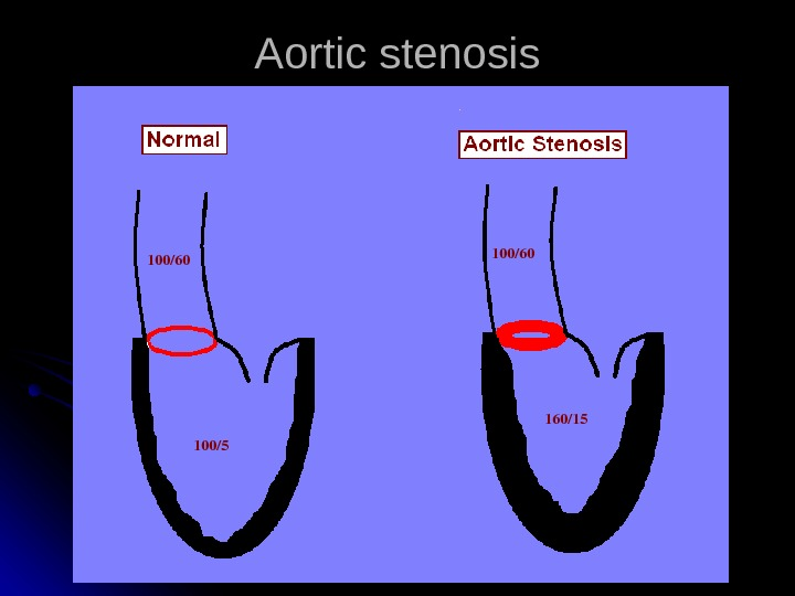 Aortic stenosis 100/60 100/5 100/60 160/15