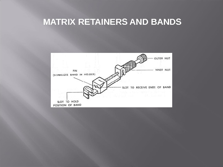 MATRIX RETAINERS AND BANDS