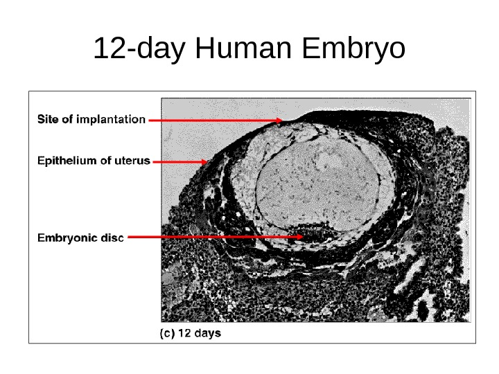 12 -day Human Embryo