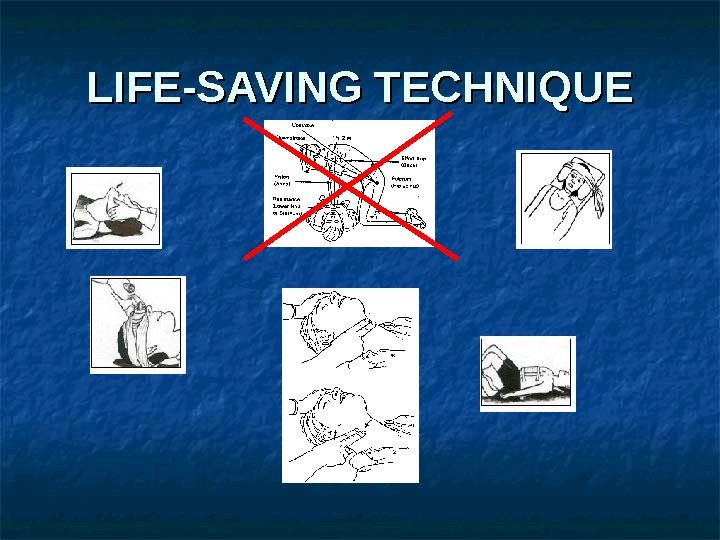 LIFE-SAVING TECHNIQUE
