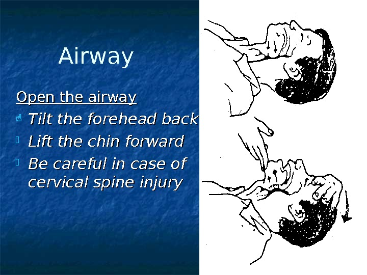 Airway Open the airway Tilt the forehead back Lift the chin forward Be careful in case
