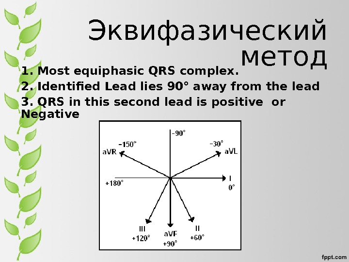 Эквифазический метод 1. Most equiphasic QRS complex.  2. Identified Lead lies 90° away from the