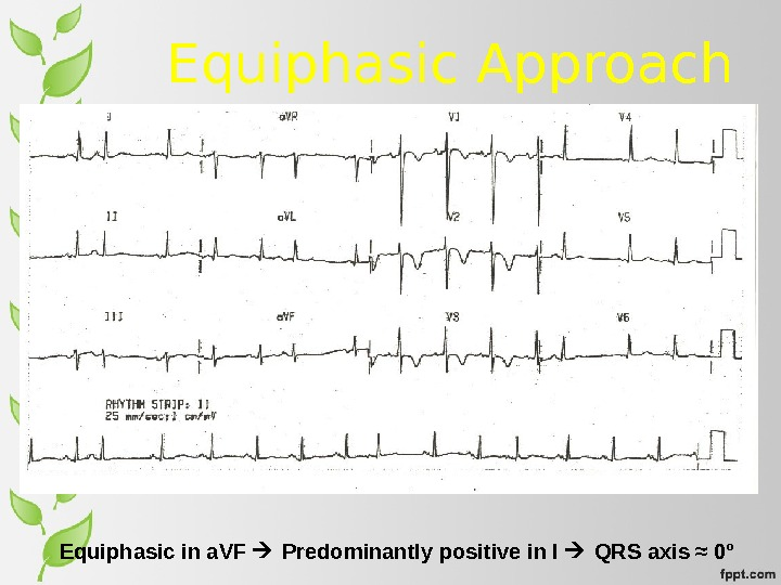 Equiphasic Approach Equiphasic in a. VF  Predominantly positive in I  QRS axis ≈ 0°