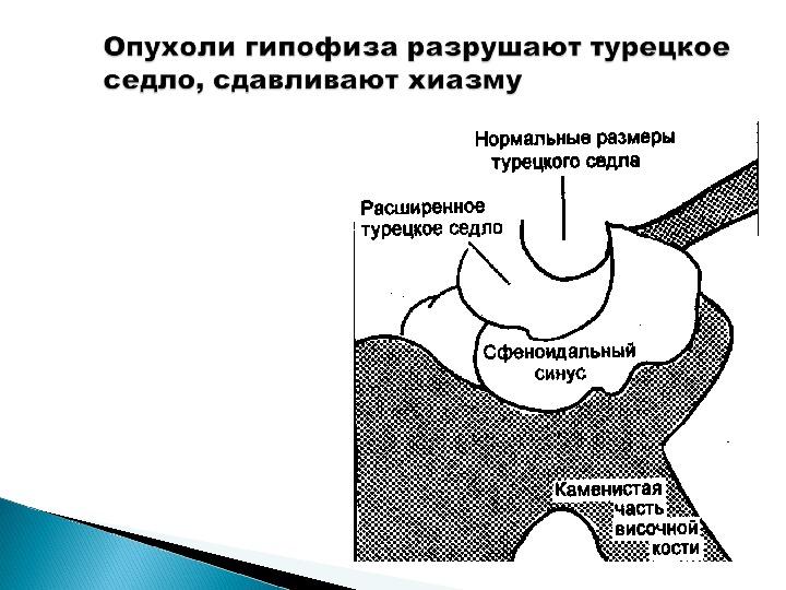 Пептид Вазоактивный Интестинальный