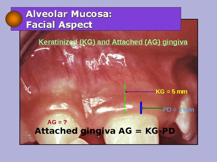 KG = 5 mm PD = 2 mm AG = ? Keratinized (KG) and Attached (AG)