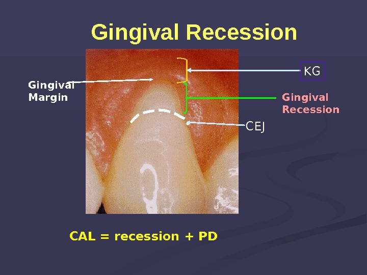 Gingival Recession Gingival Margin Gingival Recession  CAL = recession + PD CEJ KG