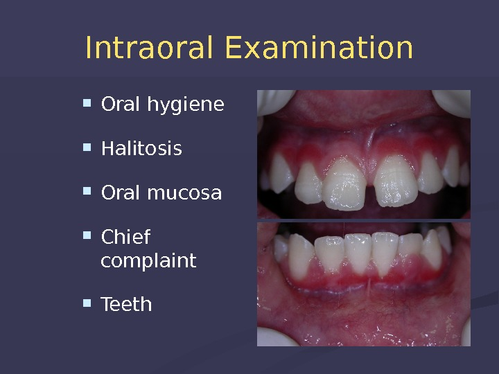Intraoral Examination Oral hygiene  Halitosis Oral mucosa Chief complaint Teeth