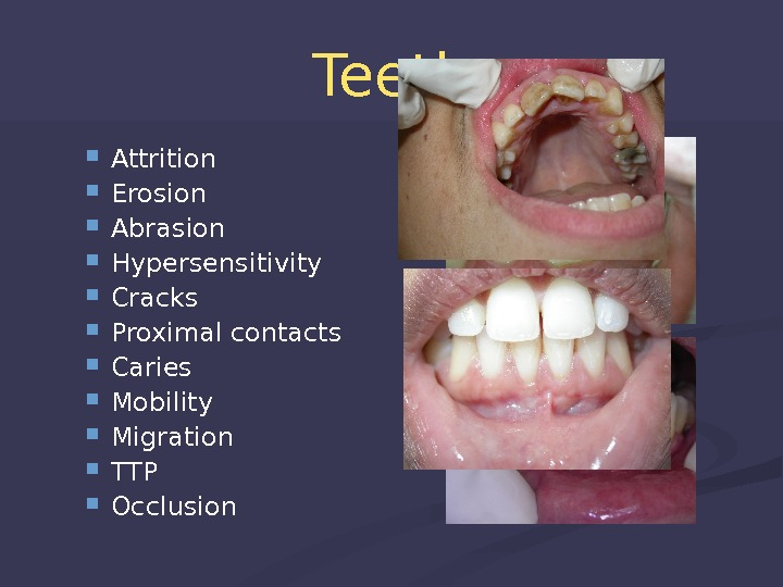 Teeth Attrition Erosion Abrasion Hypersensitivity Cracks Proximal contacts Caries Mobility Migration TTP Occlusion