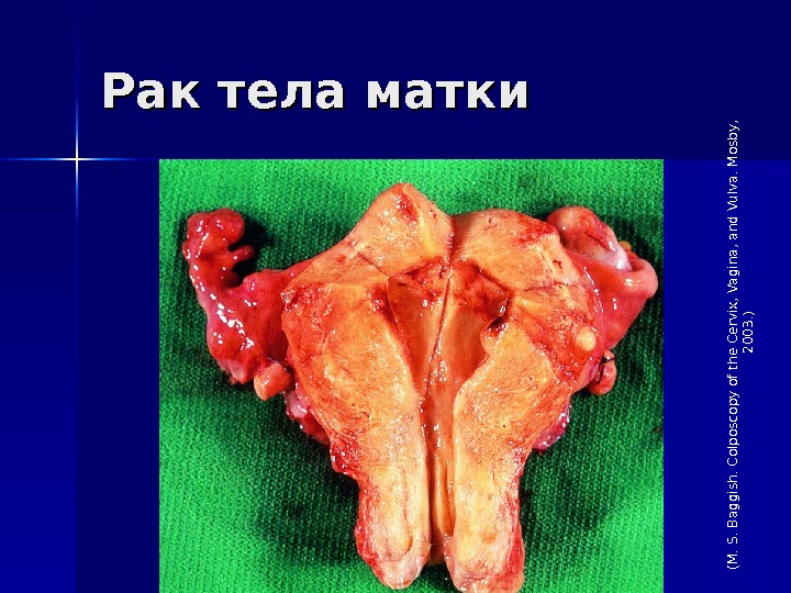 Рак тела матки(M. S. Baggish. Colposcopy of the Cervix, Vagina, and Vulva. M osby,  2003.