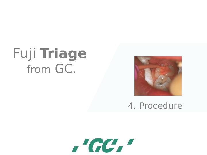 Fuji  Triage  from GC. 4. Procedure