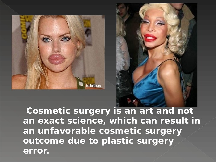 Cosmetic surgery is an art and not an exact science, which can result in an