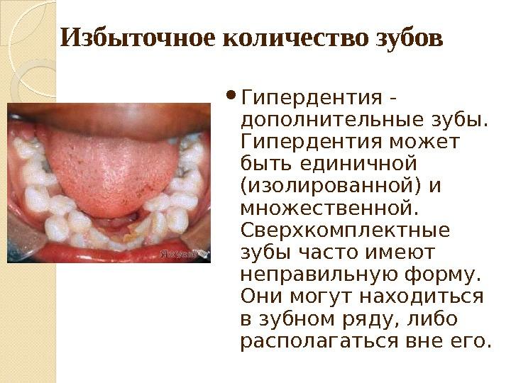 Микродентия