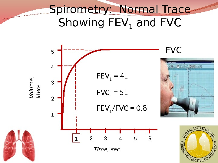 Spirometry:  Normal Trace Showing FEV 1 and FVC 1 2 3 4 5 61 234