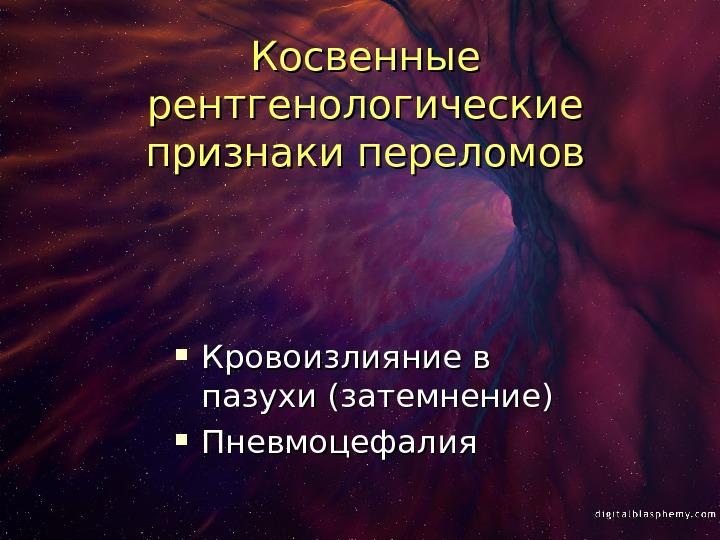 Пневмоцефалия