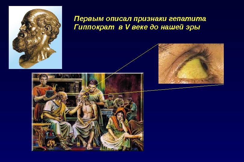 Первым описал признаки гепатита  Гиппократ в V веке до нашей эры