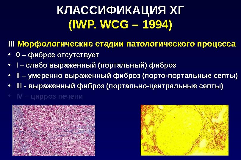 КЛАССИФИКАЦИЯ ХГ (IWP. WCG – 1994) III  Морфологические стадии патологического процесса • 0 – фиброз