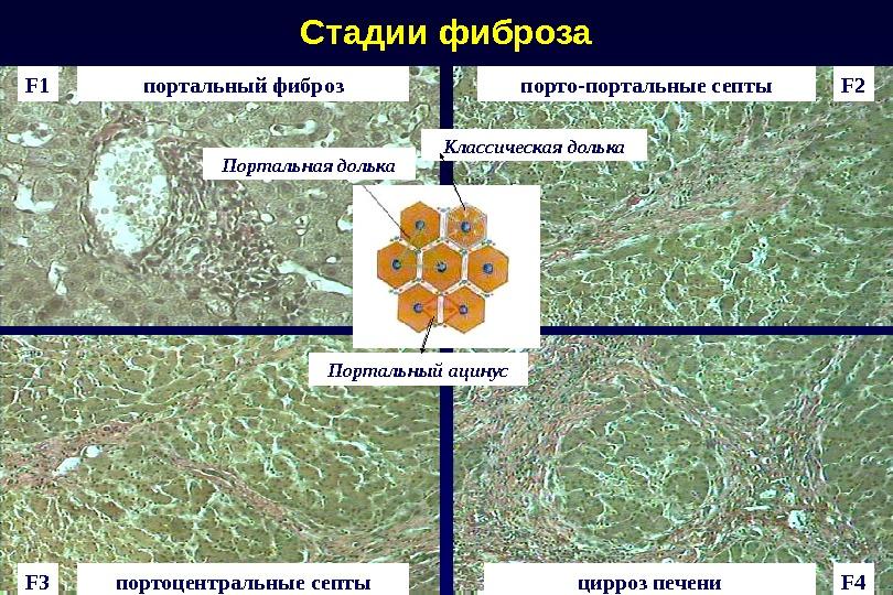 Стадии фиброза F 1 F 2 F 3 F 4портальный фиброз порто-портальные септы портоцентральные септы цирроз