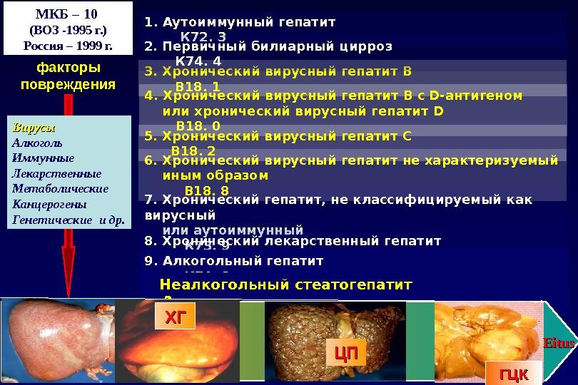 1. Аутоиммунный гепатит     К 72. 3 3. Хронический вирусный гепатит В