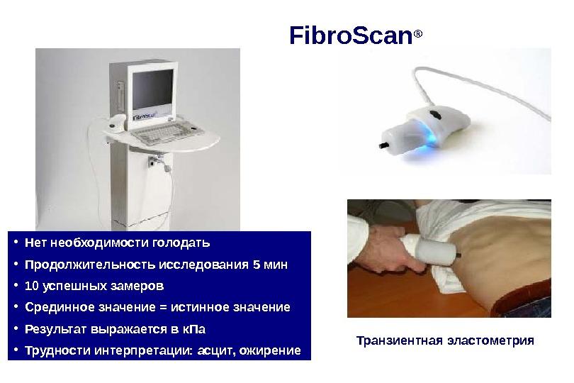 Fibro. Scan ® • Нет необходимости голодать • Продолжительность исследования 5 мин • 10 успешных замеров