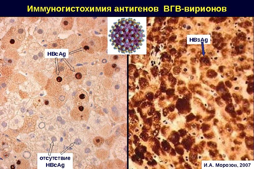 HBc. Ag HBs. Ag. Иммуногистохимия антигенов ВГВ-вирионов отсутствие HBc. Ag И. А. Морозов, 2007