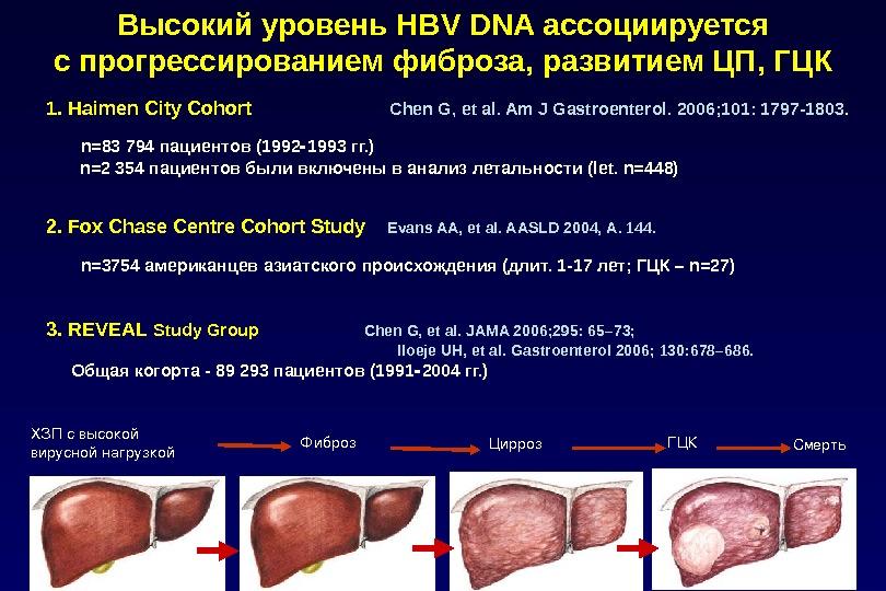 Высокий уровень HBV DNA ассоциируется с прогрессированием фиброза, развитием ЦП, ГЦК 1. Haimen City Cohort