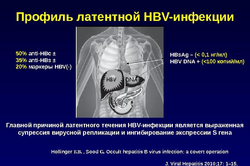 Профиль латентной HBV-инфекции 50%  аnti-HBc ± 35%  anti-HBs ± 20%  маркеры HBV(-) HBs.