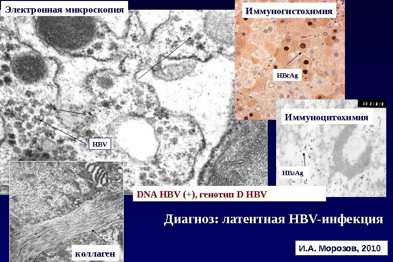 И. А. Морозов, 2010Электронная микроскопия HBс. Ag HBV HBs. Ag DNA HBV (+), генотип D HBV