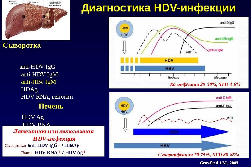 Диагностика HDV-инфекции Сыворотка     anti-HDV Ig. G