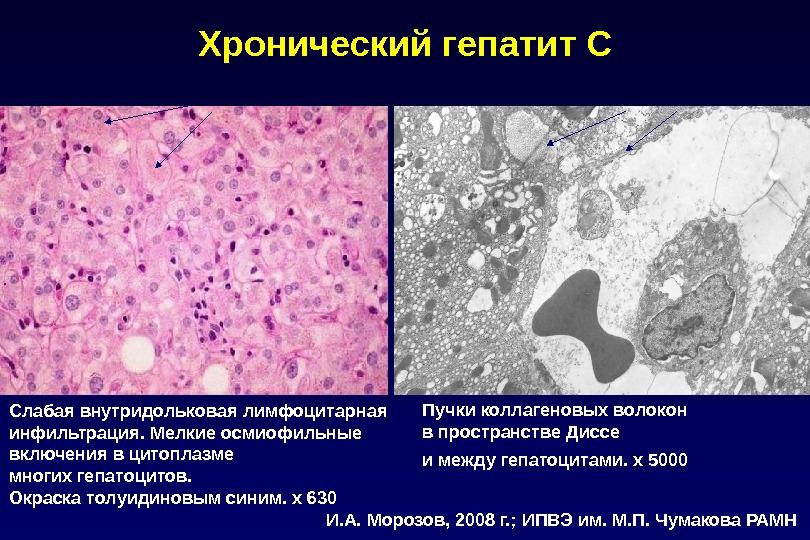 Слабая внутридольковая лимфоцитарная инфильтрация. Мелкие осмиофильные включения в цитоплазме многих гепатоцитов. Окраска толуидиновым синим. х 630