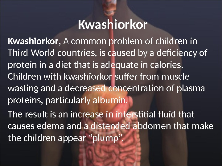 Kwashiorkor , A common problem of children in Third World countries, is caused by a deficiency