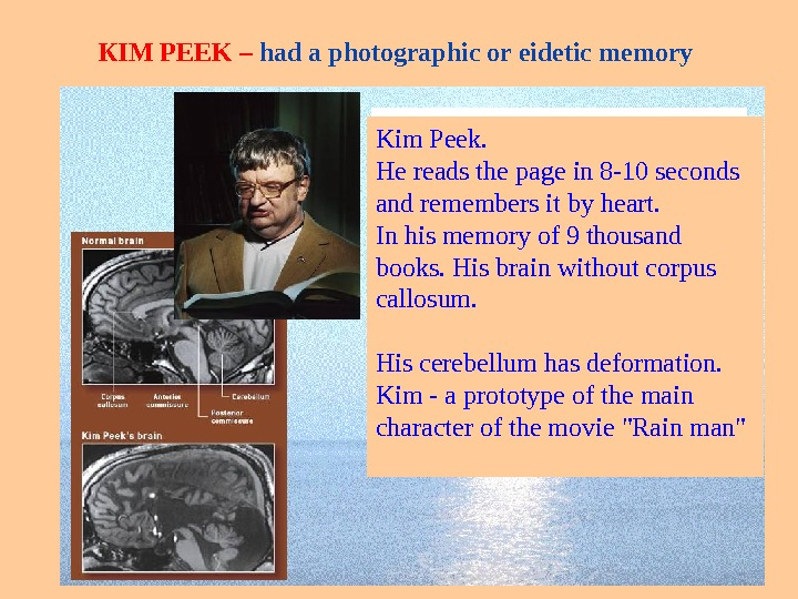 К IM PEEK – had a photographic or eidetic memory. Ким Пик (Kim. Peek) –человек с
