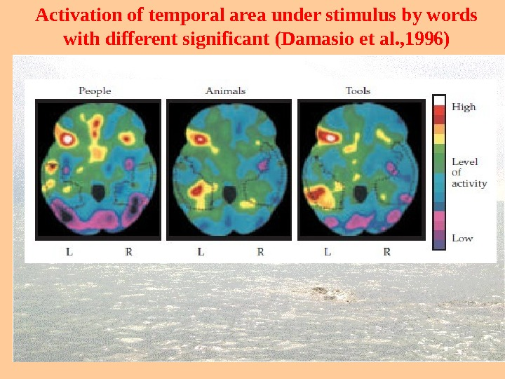 Activation of temporal area under stimulus by words with different significant ( Damasio et al. ,