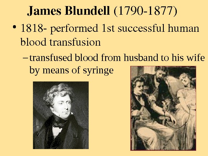 James. Blundell (17901877) • 1818 performed 1 stsuccessfulhuman bloodtransfusion – transfused blood from husband to his