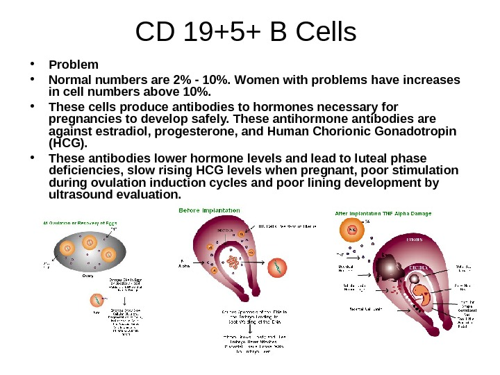 CD 19+5+ B Cells  • Problem  • Normal numbers are 2 -