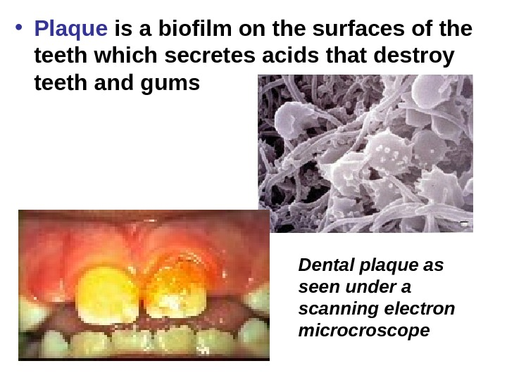 • Plaque is a biofilm on the surfaces of the teeth which secretes acids