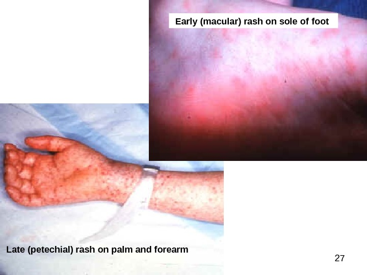 27 Early (macular) rash on sole of foot  Late (petechial) rash on palm and forearm