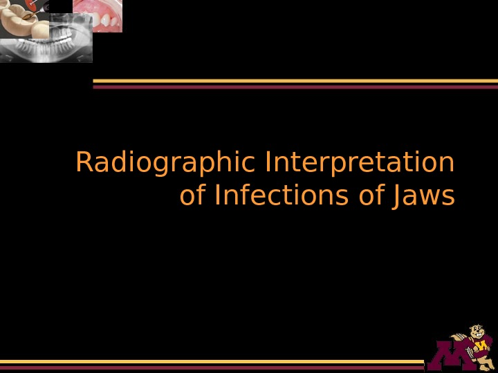 Radiographic Interpretation of Infections of Jaws