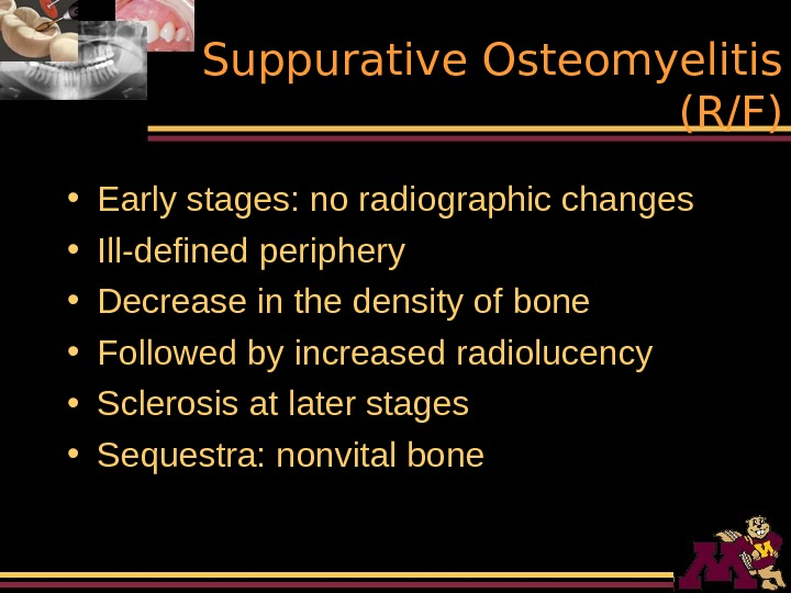 Suppurative Osteomyelitis (R/F) • Early stages: no radiographic changes • Ill-defined periphery • Decrease