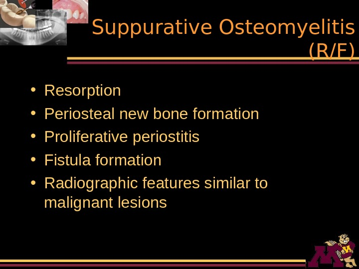 Suppurative Osteomyelitis (R/F) • Resorption • Periosteal new bone formation • Proliferative periostitis •