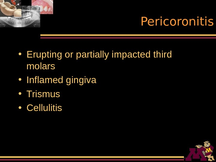 Pericoronitis • Erupting or partially impacted third molars • Inflamed gingiva • Trismus •