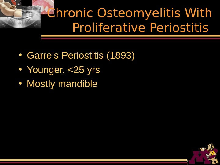 Chronic Osteomyelitis With Proliferative Periostitis  • Garre's Periostitis (1893) • Younger, 25 yrs